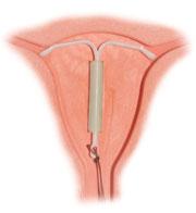spiral til prævention