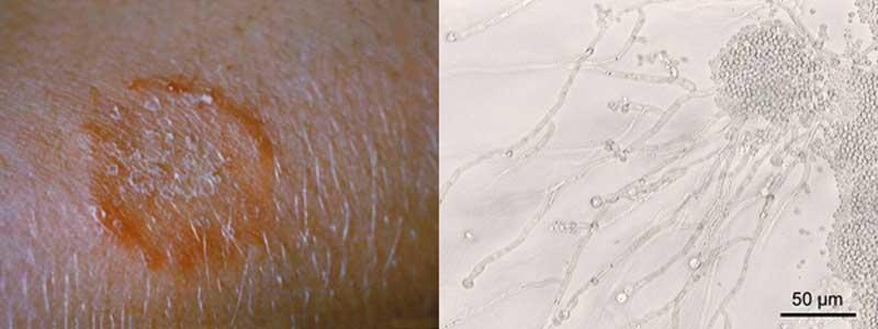 Svamp i huden behandling