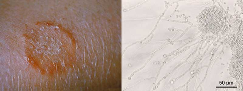 HUDSVAMP - Læs om svamp i huden