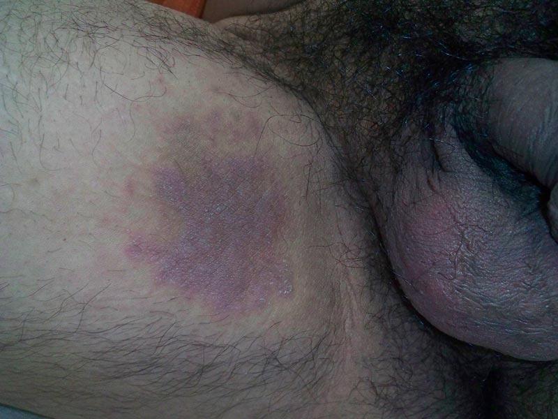 kvindens orgasmer hvornår kan en graviditet ses