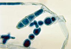 Svampen der er skyld i svamp i skridtet