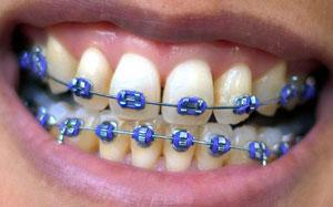 tandbøjle