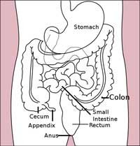 inflammation i tarmen diarre