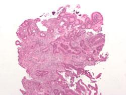 Tarmkræft