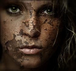 Tør hud