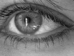 Tørre øjne er et almindeligt fænomen