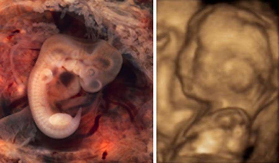 køn menstruation og gravid