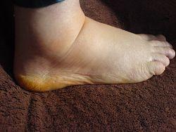 hævede ben og ankler