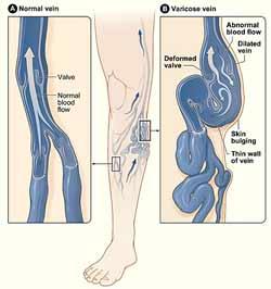 Varicer i et ben